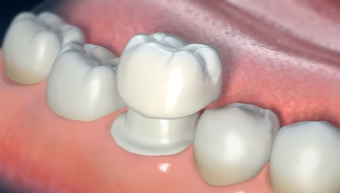 corona dental precio mexico