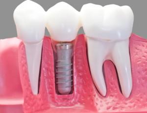 Como se hace un Implante Dental