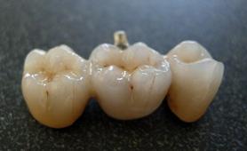implante-dental-o-puente