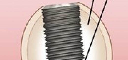 implantes de titanio