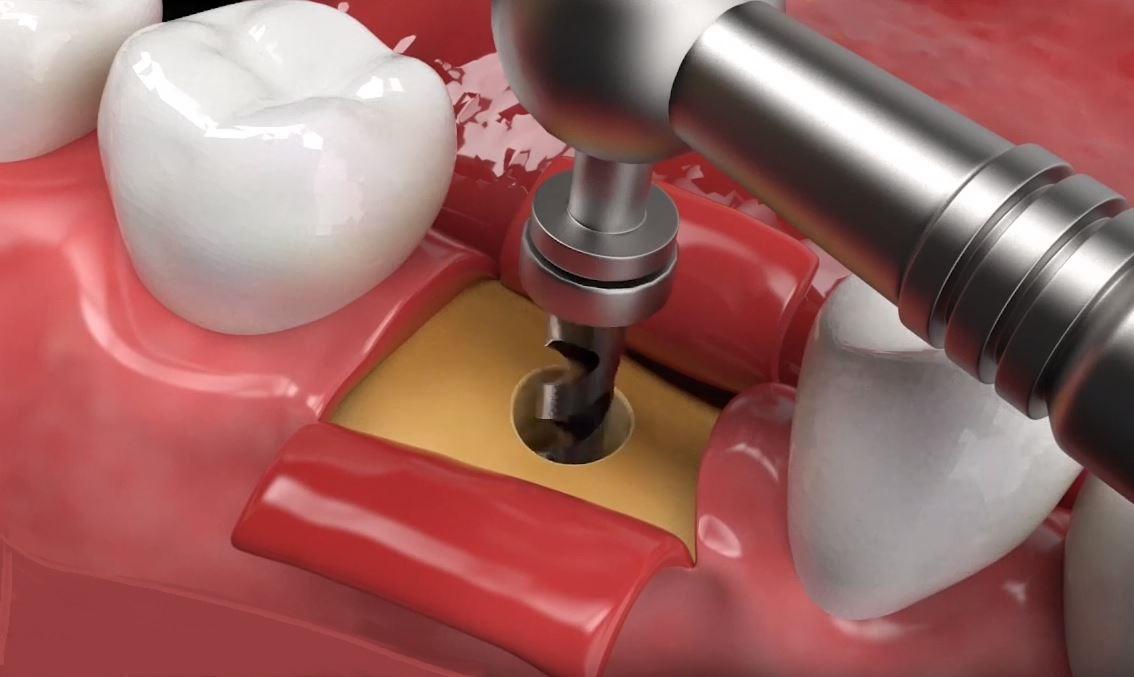 procedimiento implante dental