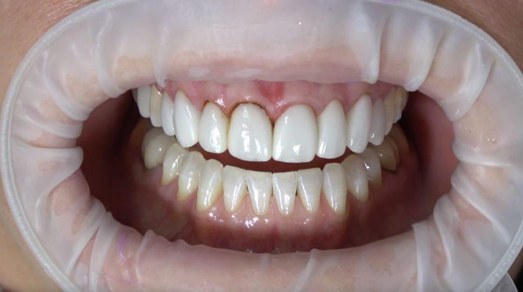 precio de corona dental en estados unidos