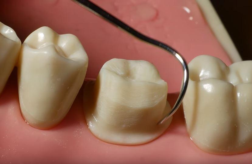 procedimiento corona dental