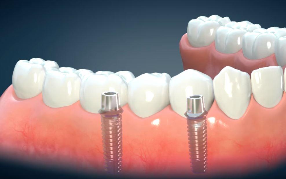 Precio implantes en España